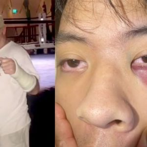 San Francisco Bar Review Bombed and Accused of Anti-Asian Racism After 18-Year-Old Beaten