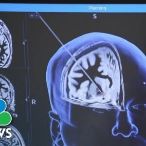 Exclusive: Could Innovative Brain Surgery Be Tool To Treat Severe Substance Abuse?